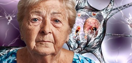 Dementia care: The sign in your eyes that could signal the brain condition