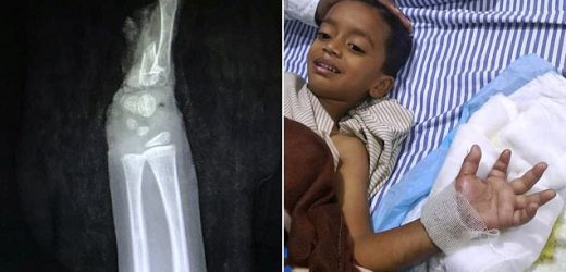 Boy gets his HAND reattached after slicing it off with a lawn mower