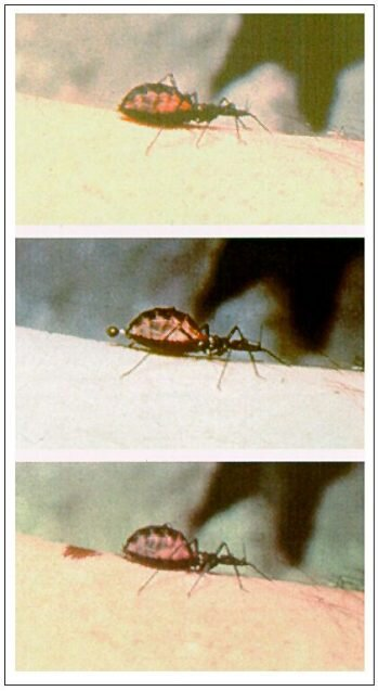 Putting neglected tropical diseases in the spotlight: Lessons learned from Chagas disease