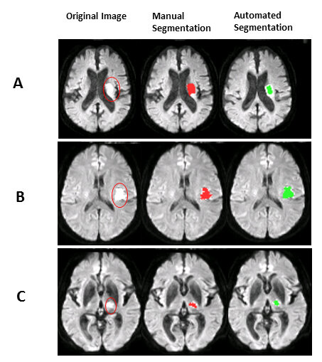 Artificial intelligence can speed up the detection of stroke
