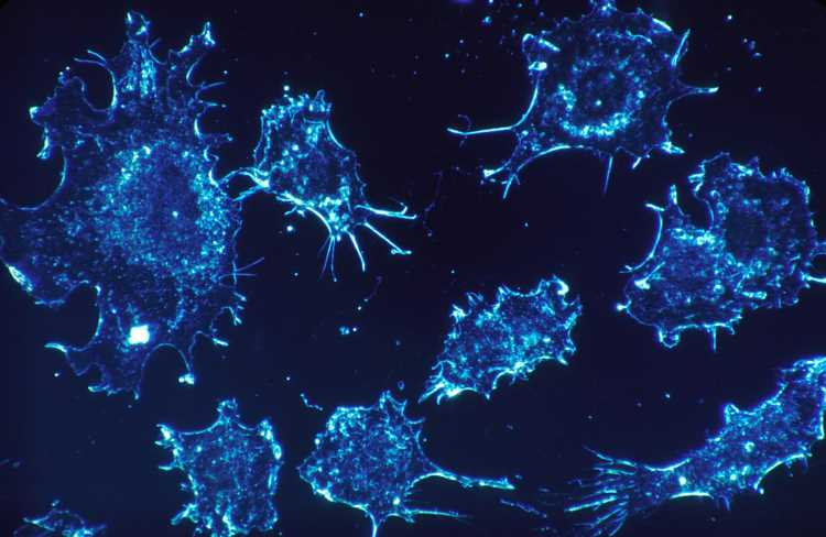 Researchers discover novel role of specific histone deacetylase in non-small cell lung cancer