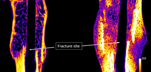 Injectable drug for faster healing of bone fractures prepares for clinical trials