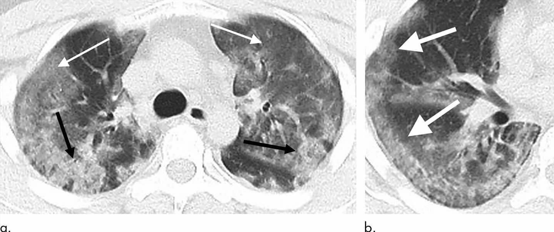 Radiologists describe coronavirus imaging features