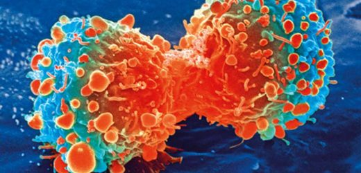 Clinically applicable math model predicts patient outcomes to cancer immunotherapy