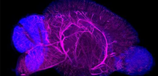 New staining technique visualizes whole organs and bodies