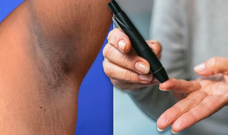 Diabetes type 2 symptoms: The hidden sign on your armpit – could you be at risk?