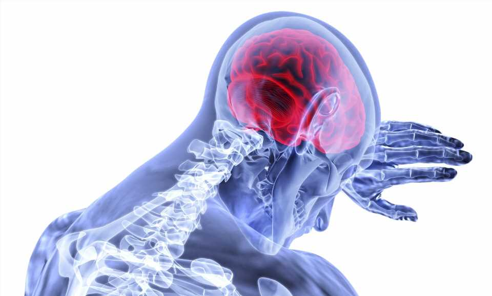 Local inflammatory cells are characteristic for advanced multiple sclerosis