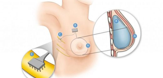 How researchers are restoring sensation via implant to breast cancer survivors