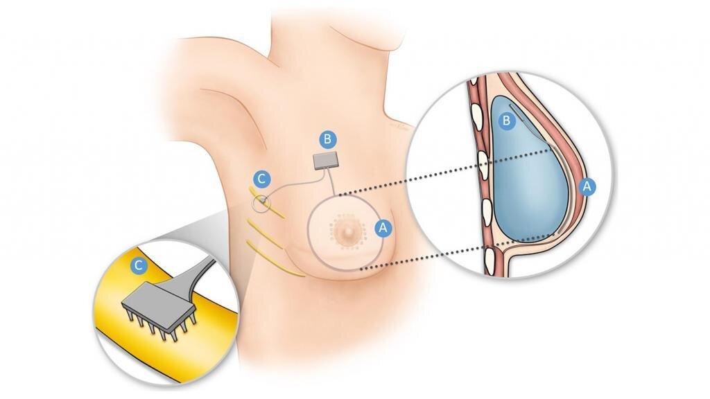 How researchers are restoring sensation via implant to breast cancer survivors