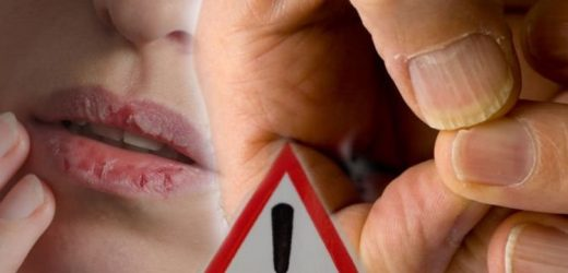 Skin cancer symptoms: Two lesser known warning signs found on the lips and nails