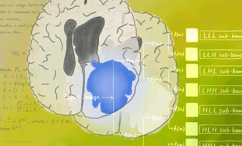Artificial intelligence enhances brain tumour diagnosis
