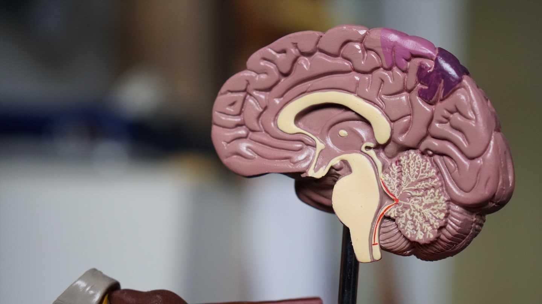 Multi-institutional study looks at brain MRI findings in COVID-19