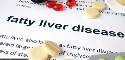 Fatty liver, a silent epidemic: The disease can remain asymptomatic for decades