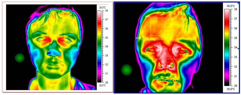 Thermal cameras aren't perfect, but they can help control the coronavirus pandemic