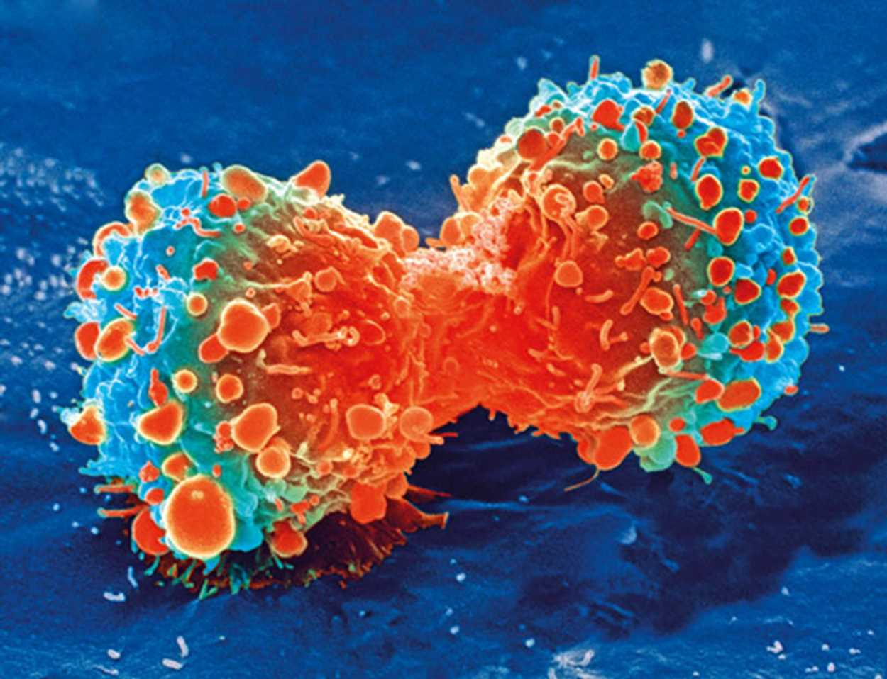 Study: The immune effects of seclidemstat in aggressive ovarian cancer striking young women