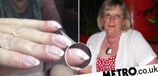 Grandma's monthly manicure 'saved her life' after her nails revealed lung cancer