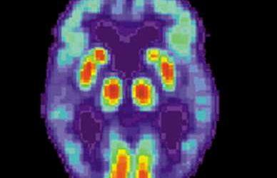 Study identifies 10 risk factors for Alzheimer's disease
