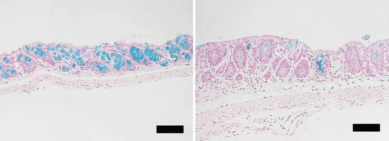 Loss of intestinal goblet cells causes fatal disease after stem cell transplantation