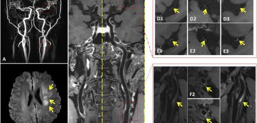 MRI study reveals arterial culprit plaque characteristics