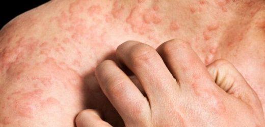 Nemolizumab beats placebo for reduction of pruritus in eczema