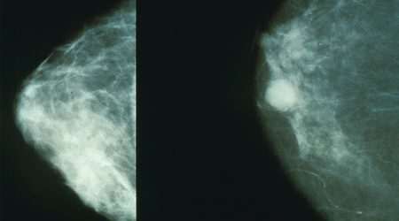 Breast screening women in their forties saves lives