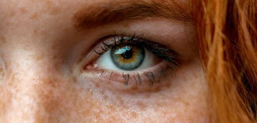 Here's the real difference between freckles and moles