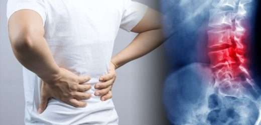 Back pain relief: Four tips to ease that achy feeling in your back