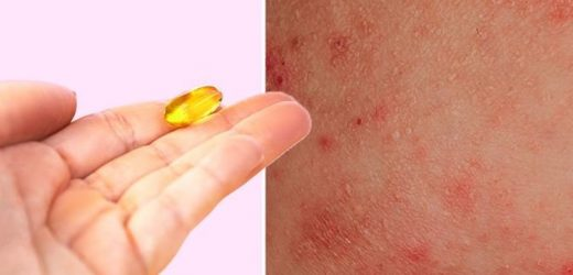 Eczema treatment: The vitamin shown to 'significantly' improve symptoms