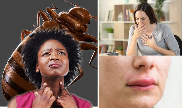 Bed bug bites: Four signs your bite could be life-threatening