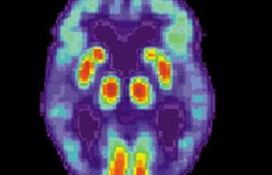 A.I. tool promises faster, more accurate Alzheimer's diagnosis