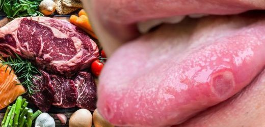 Vitamin B12 deficiency: 'Linear lesions' on your tongue is a warning sign