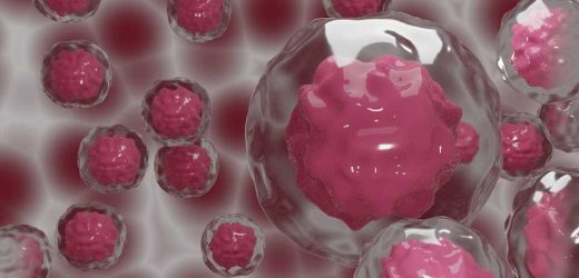 Study reveals new strategy for reducing tumor growth, metastasis