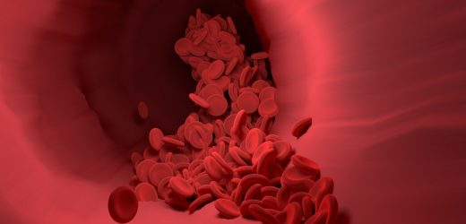 Full-dose blood thinners decreased need for life support and improved COVID outcomes