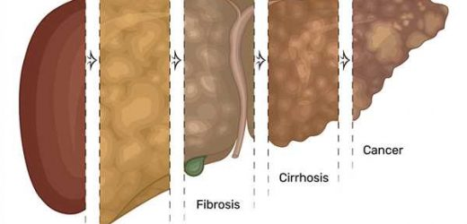 Study reveals links between fatty liver disease, liver cancer