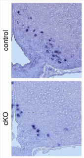 New insights on the role of the MLL4 gene in Kabuki syndrome