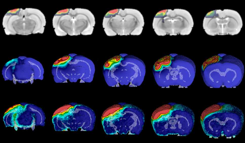 Precise mapping shows how brain injuries inflict long-term damage
