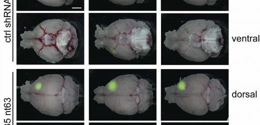 Researchers link cellular transport pathway to aggressive brain cancer