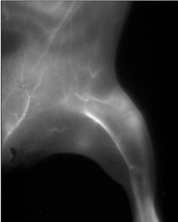 Sharpening clinical imaging with AI and currently approved contrast dyes