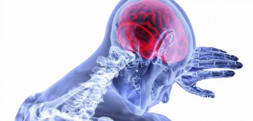 New gene variant linked to stroke