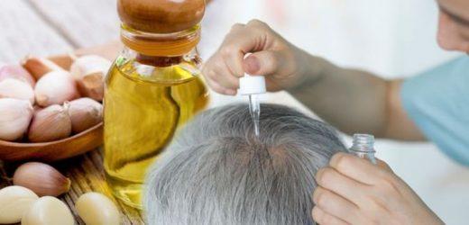Hair loss treatment: Garlic gel or juice has shown impressive results in hair regrowth