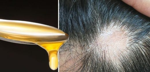 Hair loss treatment: Applying crude honey could promote hair growth, says study