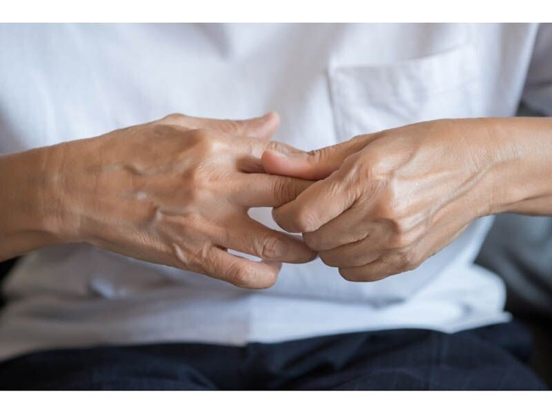 Risk for rheumatoid arthritis reduced for patients with T2DM