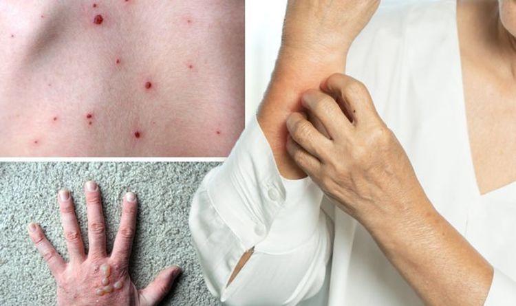 Coronavirus new strain symptoms: Four warning signs on your skin to spot