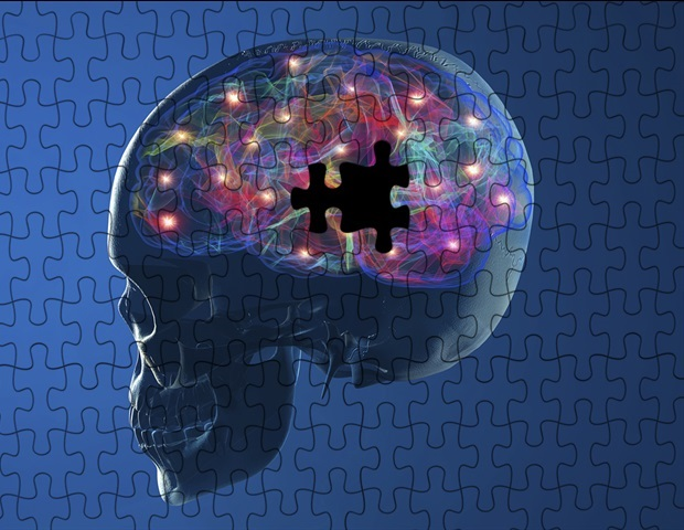 Altered neural functioning in Parkinson's patients changes the way art is perceived and valued