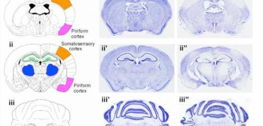Researchers identify protein produced after stroke that triggers neurodegeneration
