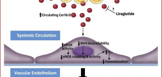 Weight-loss treatment prevents accumulation of lipid linked to cardiac mortality