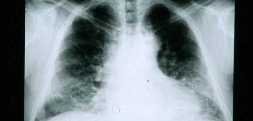 Antibiotics no help for mysterious lung-scarring disease, large trial finds