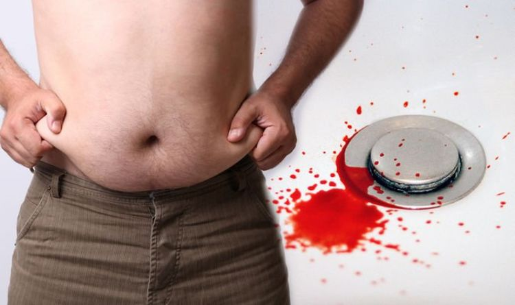 Fatty liver disease: Early warning risks could include unusual bleeding – like nosebleeds