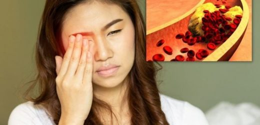 High cholesterol symptoms: Potentially blinding sign of high cholesterol in your eyes