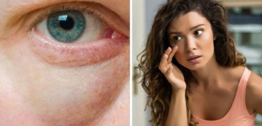 How to get rid of puffy or swollen eyes – the simple tips